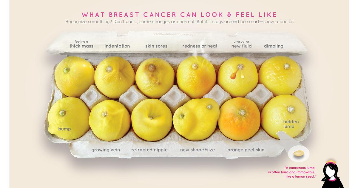 О симптомах рака молочной железы рассказали с помощью лимонов.