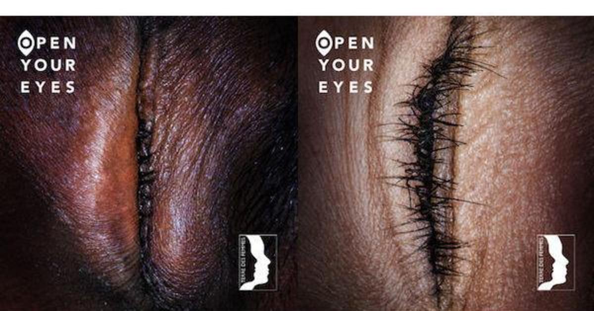 Шокирующая кампания призвала открыть глаза на проблему женского обрезания.