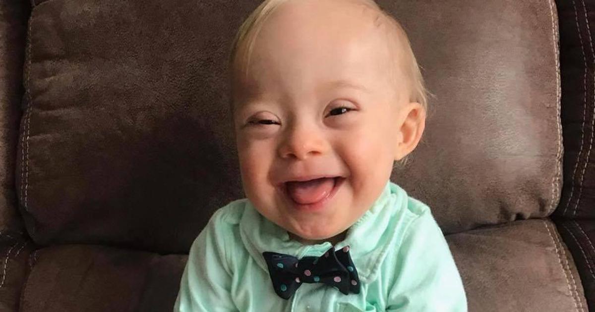 Ребенок с синдромом Дауна впервые стал лицом Gerber.