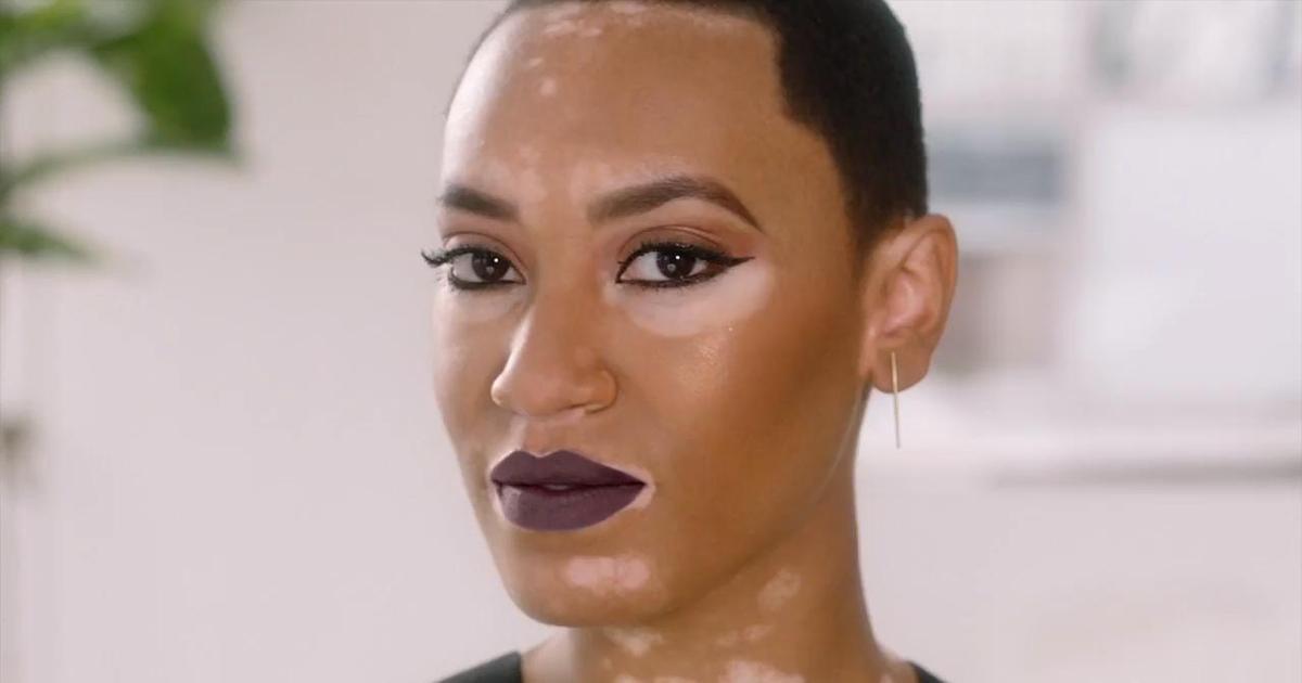 В бьюти-кампании CoverGirl впервые снялась модель с витилиго.