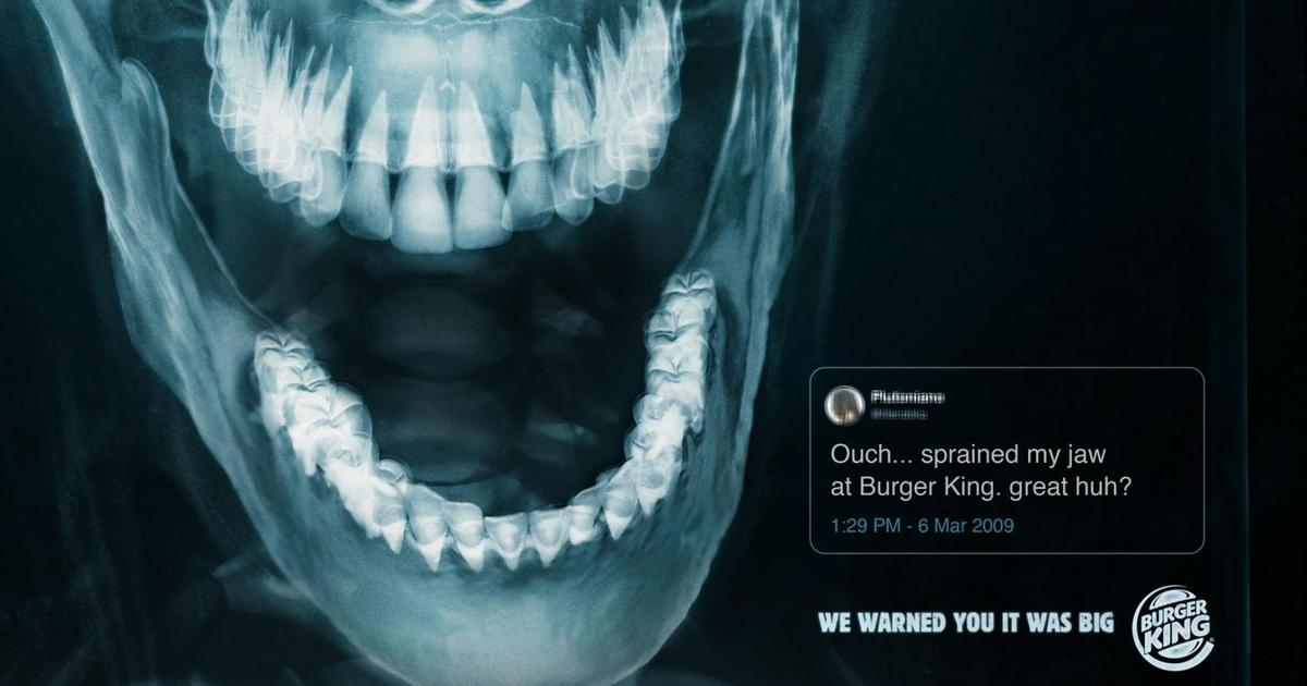Burger King запустил кампанию с рентгеновскими снимками клиентов