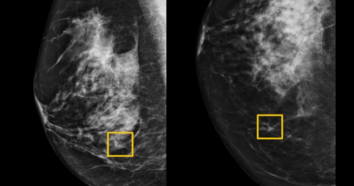 Google разрабатывает ИИ, который обнаруживает рак молочной железы точнее экспертов