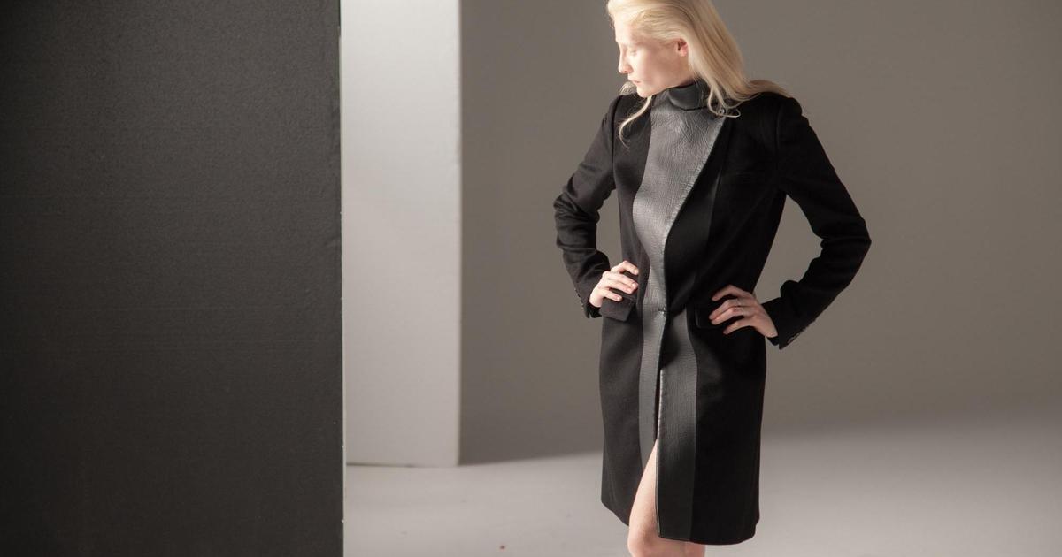 Amazon Fashion запустил феминистическую кампанию с моделью-альбиносом.
