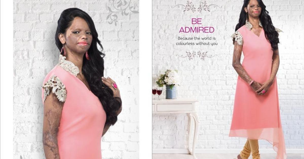 Жертва кислотного нападения стала лицом модной кампании.