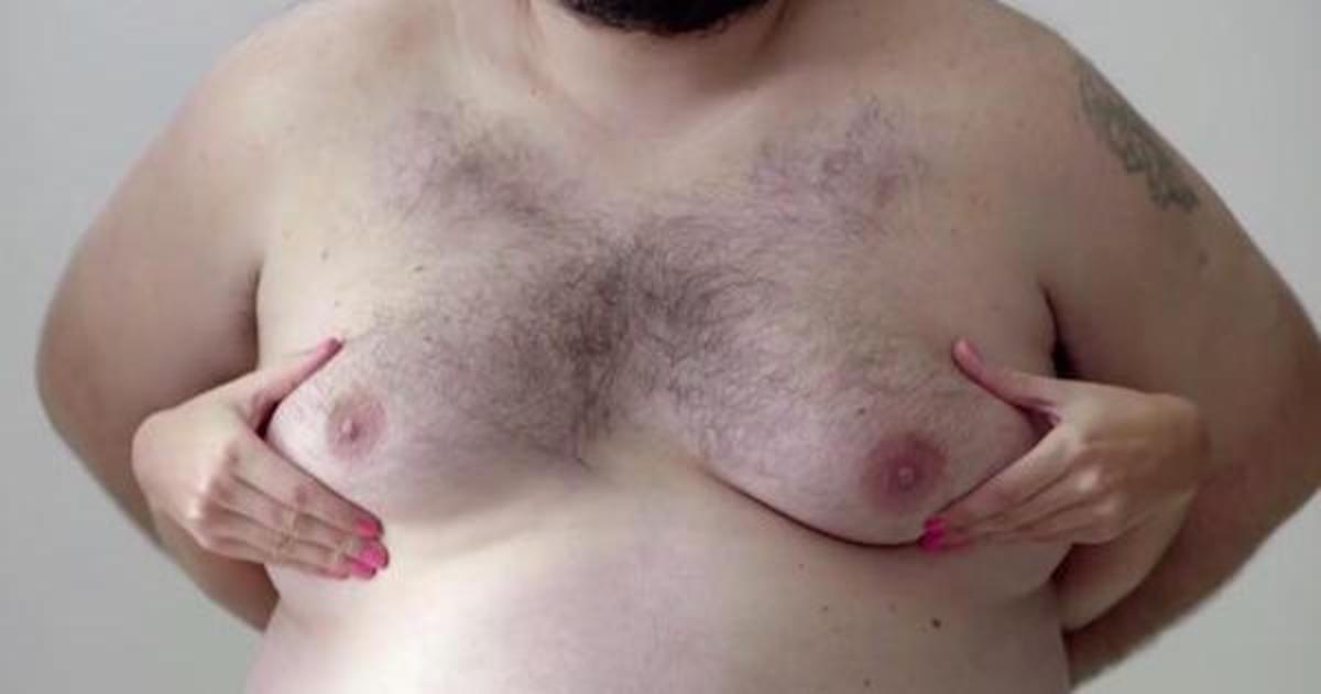 Женскую грудь заменили на мужскую в социальной рекламе #ManBoobs4Boobs.
