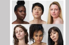 La Roche-Posay борется со стигмой вокруг кожных заболеваний в новой кампании